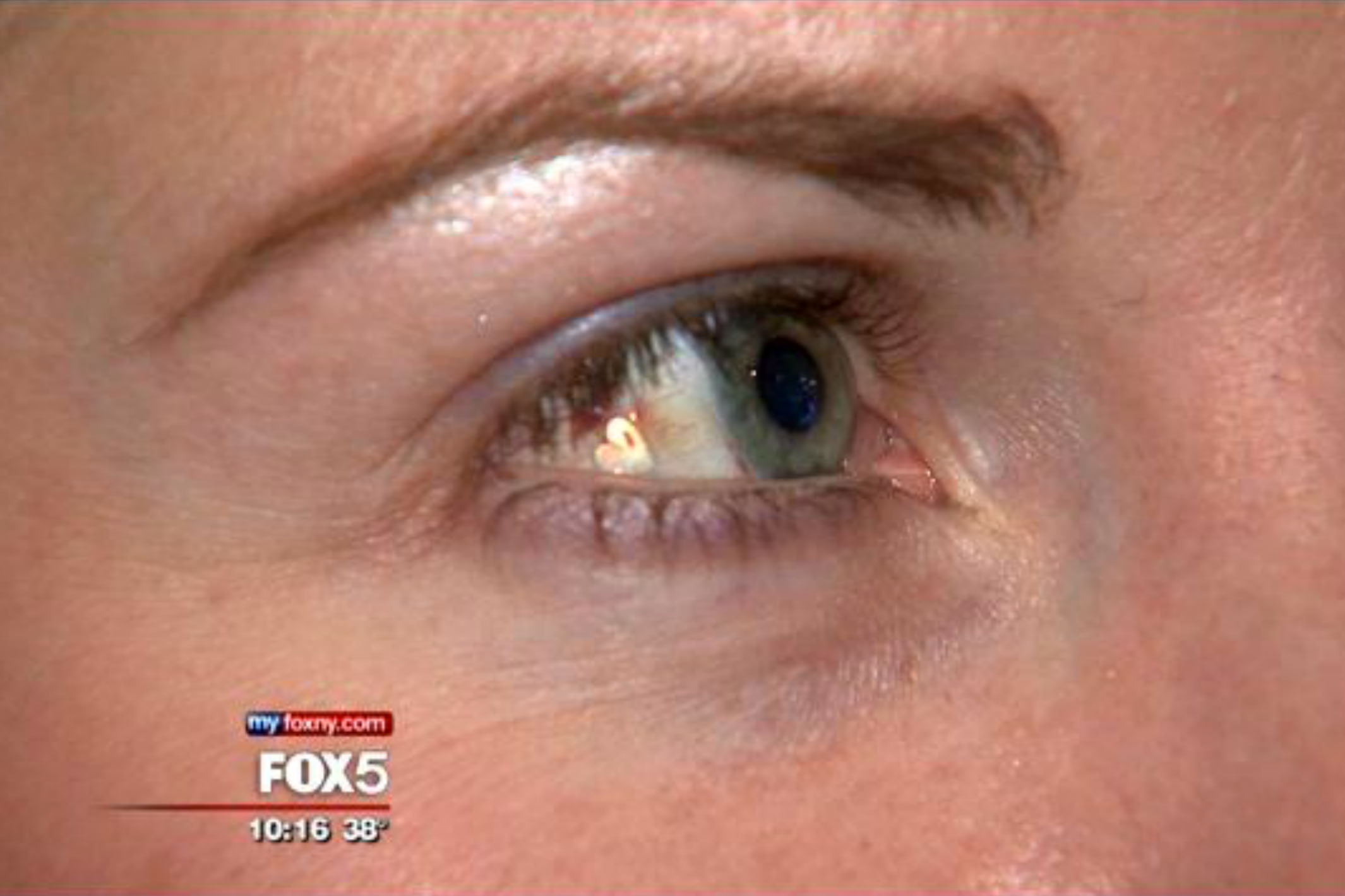 Ny trend: Operera in lyxbling i ögat